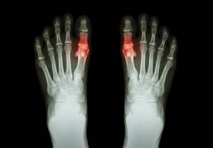PODIATRIST LOS GATOS