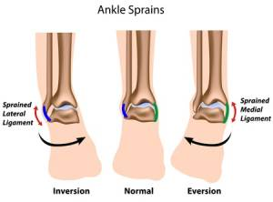 gilroy ankle sprains foot doctor workers compensation podiatrist
