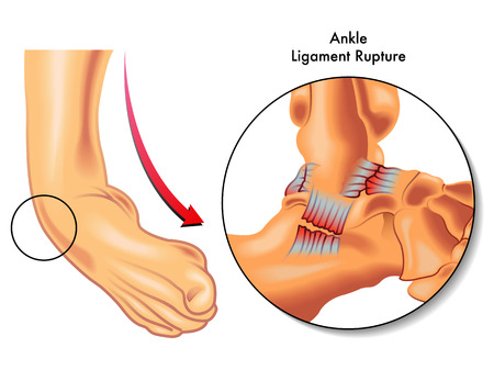 gilroy ca ankle ligament rupture
