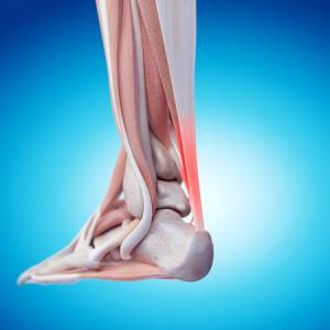 CUPERTINO podiatrists painful achilles tendon