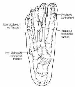 san-jose-podiatrist-dr-nguyen-ky-toe-and-metatarsal-fractures