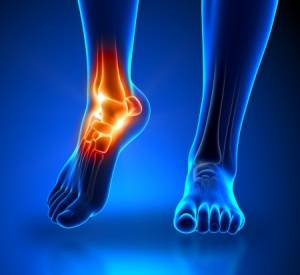 osteoarthrits ankle foot toes san jose podiatry