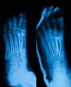 san_jose_ca_foot_ankle_podiatrist_foot_toe-fractures-surgery-doctors