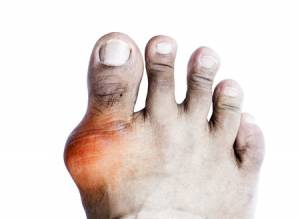 gout treatment san joe podiatrist dpm foot toe doctor