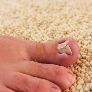 damaged toenail san jose podiatric foot ankle doctors help toenals
