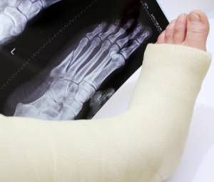 5th meatarsal fracture treatments surgery in san jose